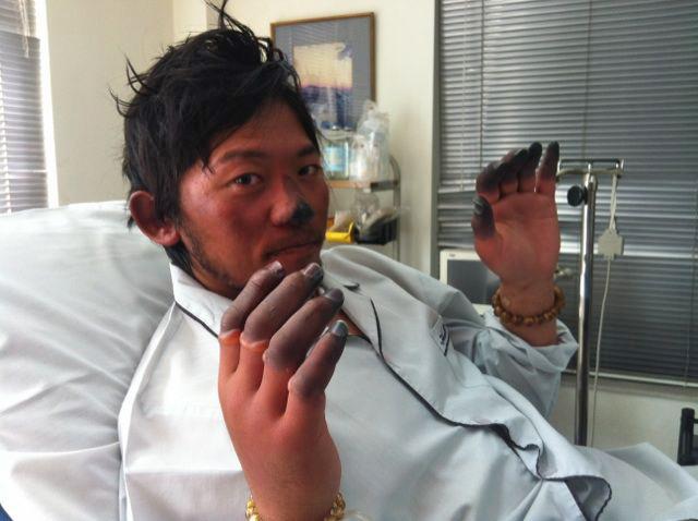 Nobukazu Kuriki zeigt Erfrierungen an Fingern und Nase nach seinem Everest-Versuch 2012: Bis auf einen Daumen hat er alle Daumen verloren. Jetzt will er einen neuen Versuch am Everest starten.