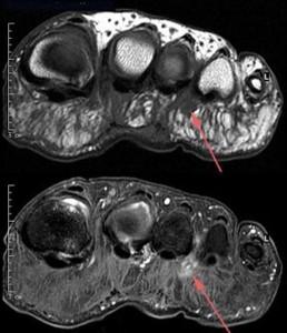 Morton Neurom MRI.