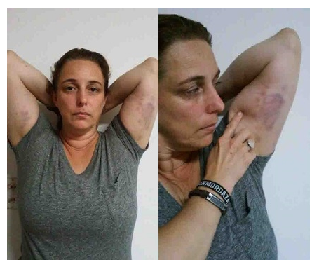 Tania Bruguera zeigt Verletzungen, die ihr im kubanischen Gefängnis zugefügt wurden