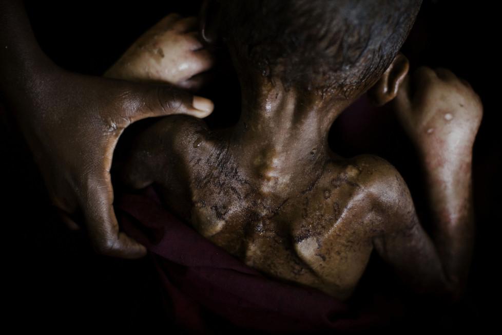 ** Fotoforum Photo 16 - Dominic Nahr ** Somalia, Mogadishu, 2011. A malnourished sick with TB is being washed by his mother in Banadir hospital. A day after this photo was taken the child died. Dominic Nahr ist seit 2008 in Afrika unterwegs, wo er den arabischen Frühling, die terroristischen Attacken in Kenia oder den Krieg im Kongo fotografisch festgehalten hat. Nahr wurde 2012 und 2013 mit dem World Press Photo Award ausgezeichnet und im letzten Jahr zum Schweizer Fotografen des Jahres gewählt. Gegenwärtig arbeitet er an dem Projekt «Fallout» – einer Arbeit über die Langzeitfolgen des Tsunami und der nuklearen Katastrophe in Fukushima.