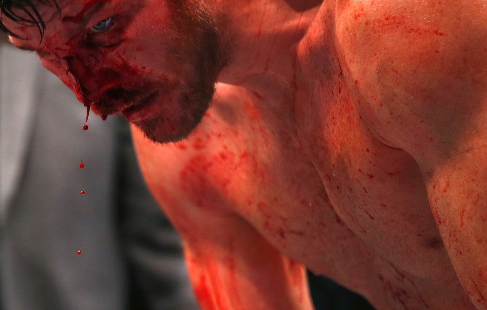 LONDON, ENGLAND - FEBRUARY 27: The blood pours from Michael Bisping of Great Britain's face as he beats Anderson Silva of Brazil during the Middleweight Bout of the UFC Fight Night at The O2 Arena on February 27, 2016 in London, England. (Photo by Christopher Lee/Getty Images) *** BESTPIX ***